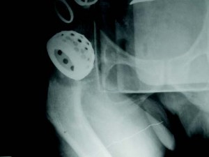 Intraoperative radiograph of right hip