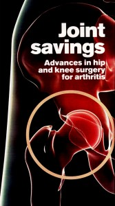 Advances in hip and knee surgery for arthritis